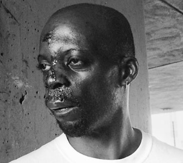 Up close portrait of Anthony Boatwright after the police brutality with extreme swelling and wounds to his face.